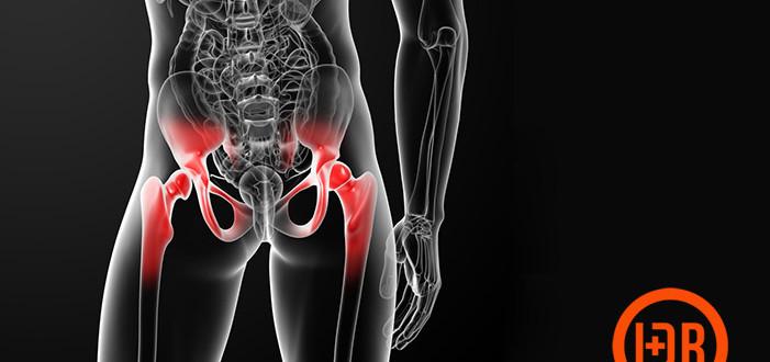 Bursitis de cadera